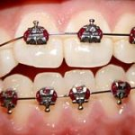 Aparat za zobe, ki je popolna inovacija